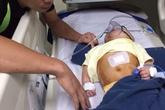 Xót xa bé gái 8 tháng tuổi đã phải trải qua 2 lần phẫu thuật não