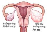 10 dấu hiệu ung thư buồng trứng cực kì nguy hiểm