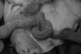 Bé trai Sài Gòn chào đời với vòng dây rốn thắt nút kỳ lạ