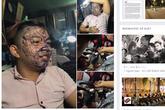 Cư dân mạng lên án chàng tranh niên xăm kín mặt vì thất tình