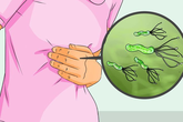 Ai mắc vi khuẩn HP cũng bị ung thư dạ dày? Đây là câu trả lời của chuyên gia ung thư