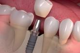 Tiết kiệm thời gian trồng răng Implant với ETK Active