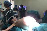 Hà Nội: Lấy khối u nặng 16kg khỏi buồng trứng một bệnh nhân nữ