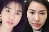 """Chán giấu giếm, mỹ nhân Việt giờ tự tin công khai toàn bộ quá trình """"dao kéo"""""""