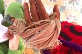 Phụ huynh tố cô giáo mầm non đánh gãy ngón tay của trẻ