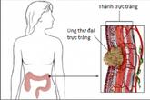 Mắc các dấu hiệu sau, cần đi khám phát hiện ung thư đại trực tràng ngay