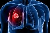Để phát hiện ung thư phổi giai đoạn sớm không nên bỏ qua điều này