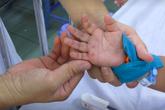 Bộ Y tế nói gì về biến đổi chủng virus dễ gây biến chứng nặng, tử vong ở trẻ mắc tay chân miệng?
