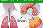 Những dấu hiệu phổ biến của bệnh phổi tắc nghẽn mãn tính mà bạn cần biết