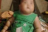 Từ vụ cháu bé 2 tuổi bị tử vong sau khi truyền dịch: Báo động những cái chết liên quan đến việc tự ý truyền dịch
