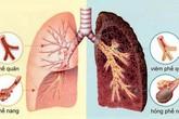 Những người có nguy cơ cao mắc bệnh phổi tắc nghẽn mạn tính