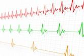 Nhịp tim chậm có nguy hiểm?