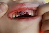 Tin tưởng cho con đi học trải nghiệm thực tế trong rừng, bà mẹ sốc khi đón con trong bộ dạng mất hàm răng cửa