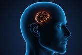 Bệnh teo não ở người già có thể chủ động phòng tránh nếu chăm sóc đúng cách