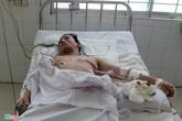 Cứu sống bệnh nhân bị đâm thủng tim ở miền Tây