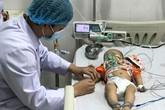 Cứu sống bé trai 6 tháng tuổi co giật toàn thân nguy kịch