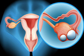 Thuốc tránh thai làm giảm nguy cơ ung thư buồng trứng