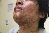 Cô gái bị biến dạng khuôn mặt vì tự ý dùng thuốc kháng sinh