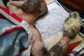 Chồng đốt rừng mưu sinh bị bỏng nặng, vợ và 5 con thơ rơi vào cảnh khốn cùng