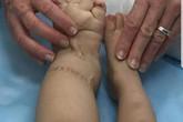 4 em bé tại Hà Nội mắc chứng bệnh phù chân voi hiếm gặp