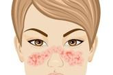 12 dấu hiệu cảnh báo bệnh lupus ban đỏ