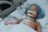 Bé gái 4 tuổi bị bút bi đâm xuyên ngực