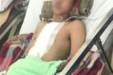 Bác sĩ Chợ Rẫy hỗ trợ bệnh viện quận cứu thanh niên bị đâm thấu tim