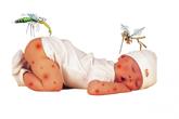 Trẻ nhỏ sốt xuất huyết có nguy hiểm?