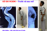 BV Bạch Mai ứng dụng thành công các hệ thống Robot hiện đại trong phẫu thuật, chi phí bằng 1/10 nước ngoài