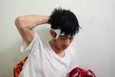 """Hà Nội: Khởi tố vụ tài xế taxi Mai Linh bị """"choảng"""" gạch"""