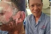 Bị bỏng nặng do nổ lò luyện gang, bệnh nhân được chữa khỏi bằng oxy cao áp