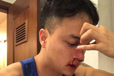 Cao Thái Sơn chia sẻ tình trạng bệnh khiến anh chưa thể đi hát lại