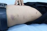 Hải Phòng: Thực hư việc công an phường bị tố đánh người