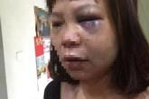 Nữ hộ lý bệnh viện ở Quảng Ninh bị chồng bạo hành dã man
