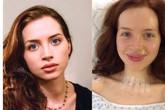 Bức ảnh tiết lộ dấu hiệu ung thư tuyến giáp rất rõ ràng nhưng đáng tiếc là nữ diễn viên trẻ đã không nhận ra