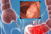 Dấu hiệu cảnh báo bị ung thư đại trực tràng, cần phải ngăn ngừa càng sớm càng tốt