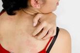 Ngứa da không chỉ là bệnh da liễu mà còn cảnh báo bệnh nguy hiểm về gan