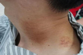 Bị đột quỵ cấp tính sau khi đi massage thư giãn, chuyên gia cảnh báo 6 dấu hiệu nguy hiểm