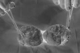 4 yếu tố nguy cơ rất cao khiến nam giới dễ bị ung thư tinh hoàn