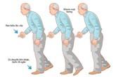 Người cao tuổi bị Parkinson nên biết những điều này