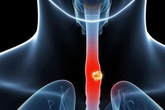 Thói quen làm tăng 10 lần nguy cơ mắc ung thư thực quản nhiều quý ông vẫn không từ bỏ