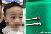 Bé trai dụi mắt đến mức chảy máu mắt, mẹ đưa đi khám phát hiện nguyên nhân do cha