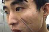 Hé lộ nguyên nhân đối tượng sát hại người yêu trong nhà nghỉ ở Sầm Sơn