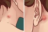 """3 thay đổi lạ trên cổ ngầm cảnh báo tế bào ung thư có thể đang chực chờ """"trỗi dậy"""""""