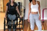 Một người phụ nữ đang khỏe mạnh bỗng dưng cơ thể bị tàn phá bởi căn bệnh đáng sợ