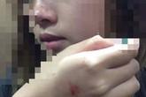 Nữ sinh bị sàm sỡ trong thang máy muốn 'yêu râu xanh' xin lỗi công khai