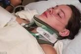 Cái kết đắng của cô gái đẩy bạn thân xuống dưới nước ở độ cao gần 20m khiến nạn nhân bị thủng phổi, gãy 6 xương sườn