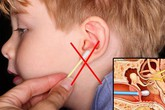 Từ vụ nhiễm trùng não do dùng tăm bông ngoáy tai, bác sĩ chỉ cách vệ sinh tai an toàn, hiệu quả