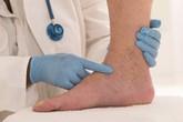 Dấu hiệu thay đổi trên da cho thấy bạn đã bị bệnh gan: Nếu trùng khớp thì nên đi khám ngay