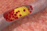 Người bị máu nhiễm mỡ cần làm gì để không bị tái phát